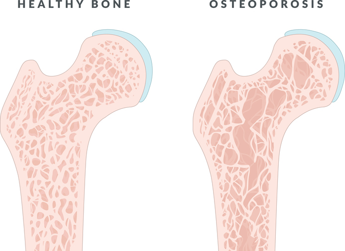 an overview of the bone disease osteoporosis in orthopedic medical research Patients in ckd stages 3-5 may have coexisting metabolic bone disease  colorado center for bone research in summary, ckd-mbd and osteoporosis may share some.