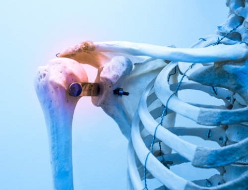 Tips for Shoulder Rehab Pain