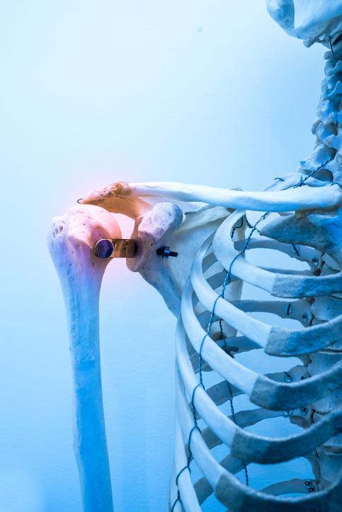 Tips for Shoulder Rehab Pain