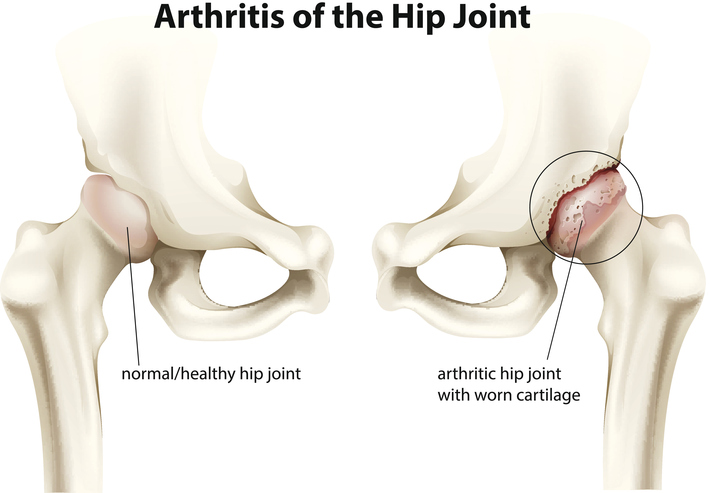 In Need of a Hip Repair?