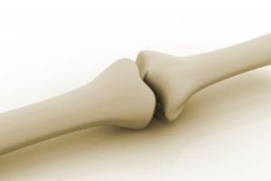 Osteoporosis And Osteopenia – Is There A Difference?