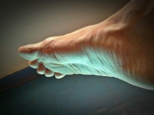 Plantar Fasciitis Doesn't Have To Be A Mystery